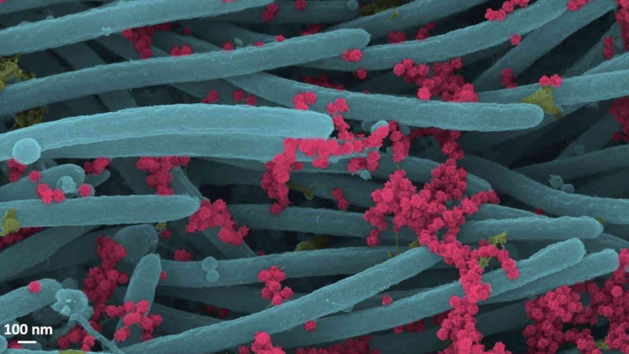 SARS-CoV-2-Virionen, die von Atemwegsepithelzellen produziert wurden.